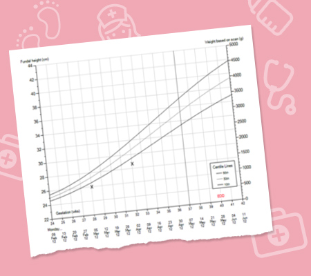 Customised Growth Charts